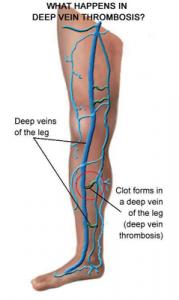 vascular doctor